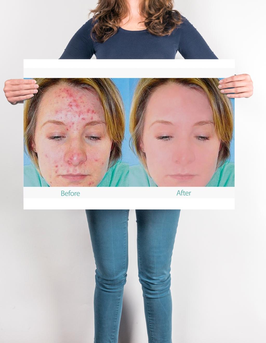 Skin Clearing Photo Retouching